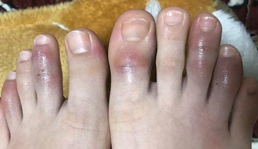 子供の手足のしもやけ劇的改善 原因・対処法・皮膚科の薬・市販薬